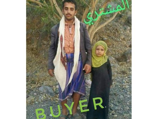Yemen: Father sells his daughter for $400